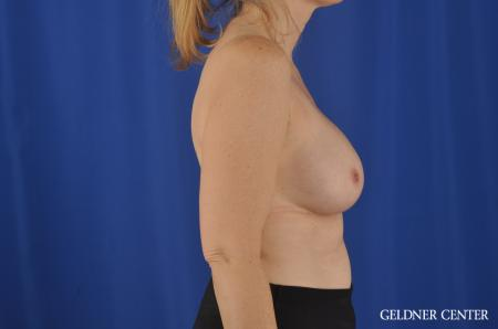 Breast Augmentation Streeterville, Chicago 8749 -  After Image 2