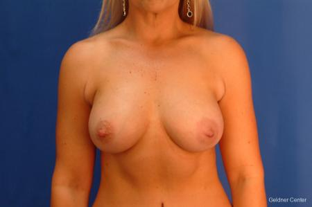 Breast Augmentation Hinsdale, Chicago 2632 -  After 1