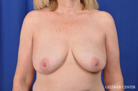 Breast Lift: Patient 51 - Before Image 1