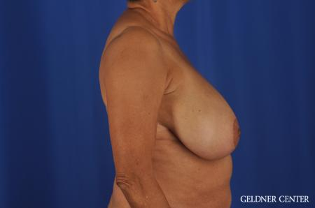 Breast Reduction Streeterville, Chicago 6650 - Before Image 3