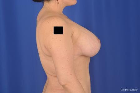Breast Lift: Patient 18 - After Image 3