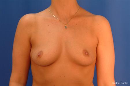 Chicago Breast Augmentation 2432 - Before Image 1