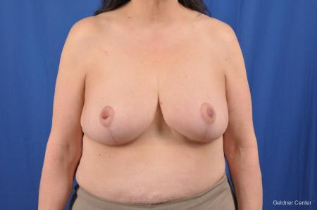 Breast Reduction: Patient 29 - After Image 1