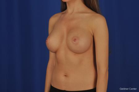 Breast Augmentation Hinsdale, Chicago 2373 -  After Image 4