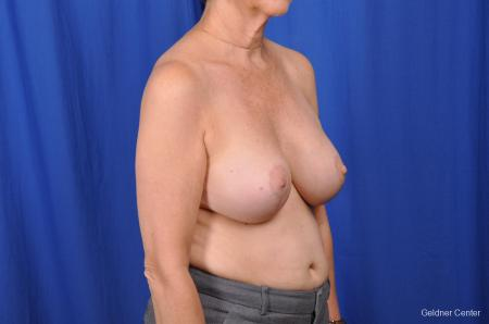 Breast Augmentation Lake Shore Dr, Chicago 2057 -  After Image 3