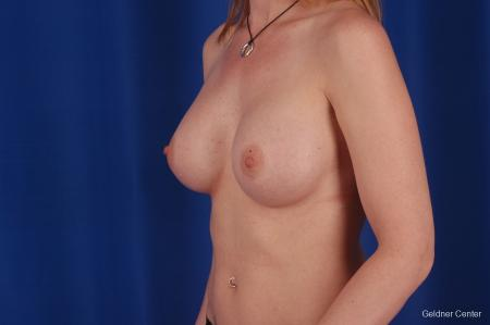 Chicago Breast Augmentation 2634 -  After Image 4