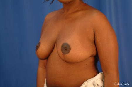 Chicago Breast Reduction 2441 -  After Image 4