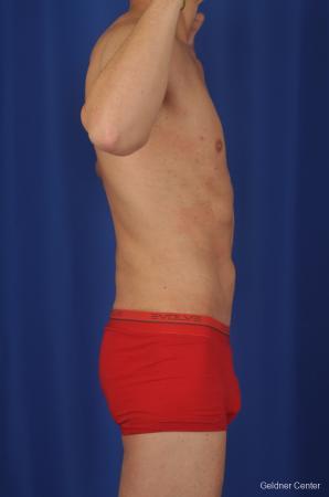 Liposuction For Men: Patient 2 - After Image 3