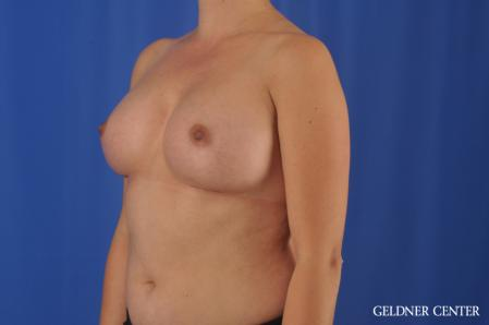 Breast Augmentation: Patient 180 - After Image 4