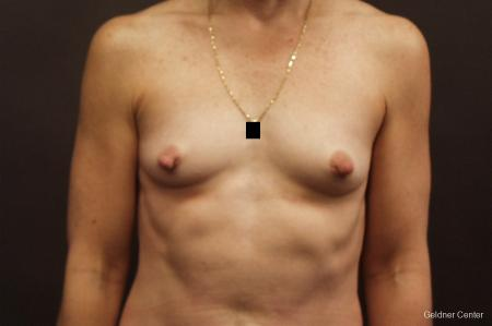 Chicago Breast Augmentation 2635 - Before Image 1