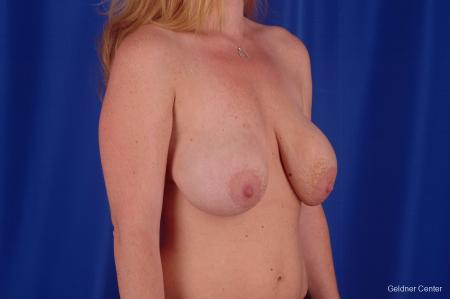 Chicago Breast Lift 2291 - Before Image 2