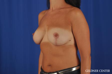 Breast Lift: Patient 48 - After Image 4