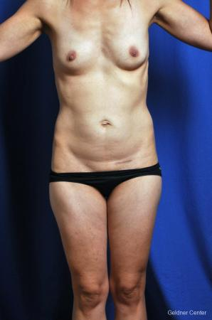 Tummy Tuck: Patient 6 - Before Image 1