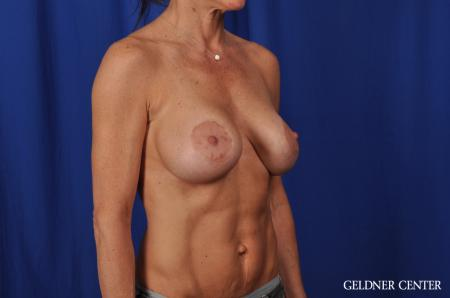 Chicago Complex Breast Augmentation 5471 -  After Image 2