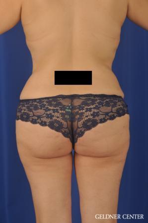 Lipoabdominoplasty: Patient 7 - After Image 4
