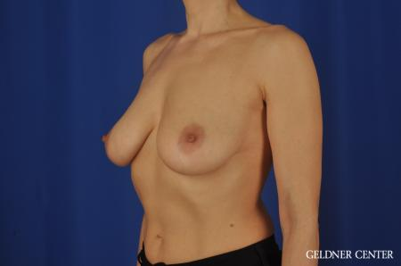 Chicago Breast Augmentation 5475 - Before and After Image 4