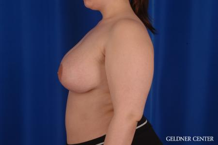 Chicago Complex Breast Augmentation 2616 -  After Image 4