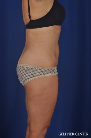 Tummy Tuck: Patient 22 - After Image 3