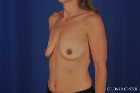 Breast Augmentation Lake Shore Dr, Chicago 8748 - Before and After Image 4