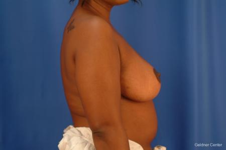 Chicago Breast Reduction 2441 -  After Image 2