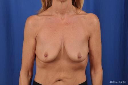 Breast Augmentation: Patient 154 - Before Image 1
