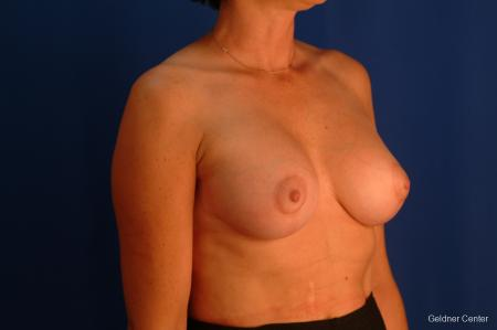 Breast Lift Hinsdale, Chicago 2509 -  After Image 3