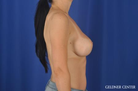 Chicago Breast Augmentation 6655 -  After Image 3
