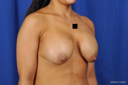 Chicago Breast Lift 2059 - Before Image 3