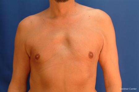 Gynecomastia: Patient 6 - After Image