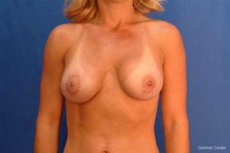 Breast Augmentation Lake Shore Dr, Chicago 2637 -  After Image 1