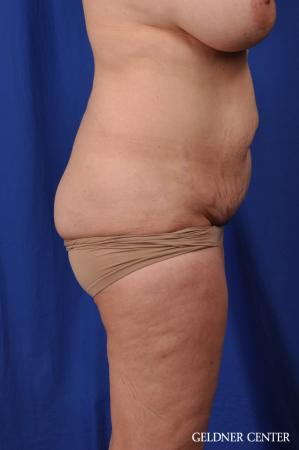 Tummy Tuck: Patient 23 - Before Image 3