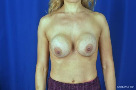 Chicago Breast Lift 2072 - Before Image