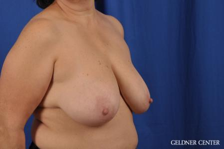 Breast Reduction: Patient 31 - Before Image 2