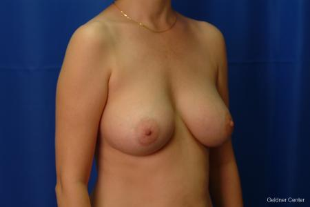 Chicago Breast Augmentation 2413 -  After Image 3