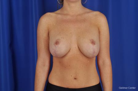 Chicago Breast Lift 2291 -  After Image 1