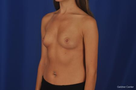 Breast Augmentation Hinsdale, Chicago 2373 - Before Image 4