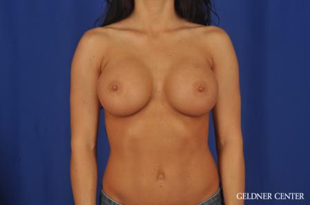 Breast Augmentation: Patient 175 - After Image 1