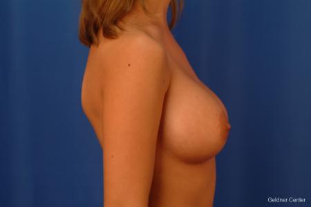 Breast Augmentation Lake Shore Dr, Chicago 2533 -  After Image 2