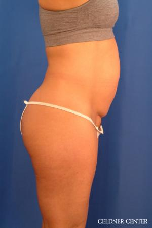 Tummy Tuck: Patient 34 - Before Image 3