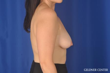 Chicago Breast Lift 11857 - Before Image 2