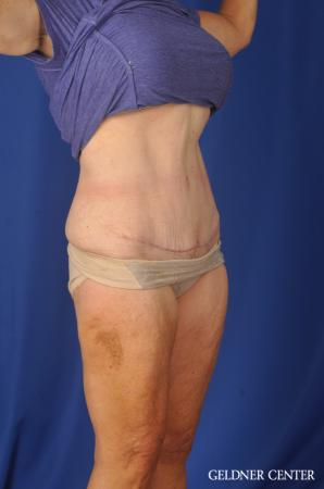 Liposuction: Patient 34 - After Image 2