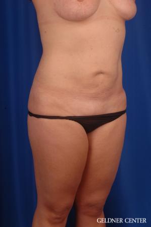 Liposuction: Patient 46 - After Image 2