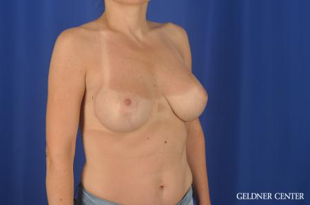 Chicago Breast Lift 6656 -  After Image 2
