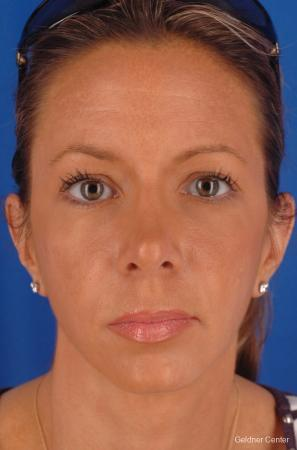 Rhinoplasty: Patient 3 - After Image 1