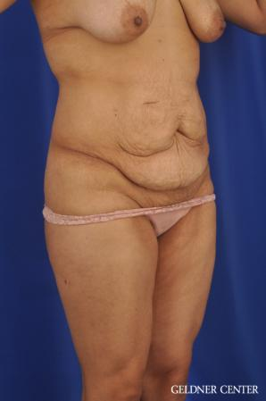 Tummy Tuck: Patient 33 - Before Image 2