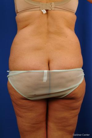 Liposuction: Patient 10 - Before and After Image 4