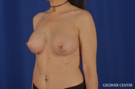 Breast Augmentation Hinsdale, Chicago 5579 -  After Image 4