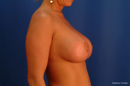 Breast Augmentation Hinsdale, Chicago 2427 -  After Image 2