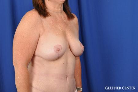Breast Lift Hinsdale, Chicago 3232 -  After Image 3