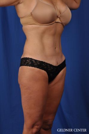 Liposuction: Patient 43 - After 2